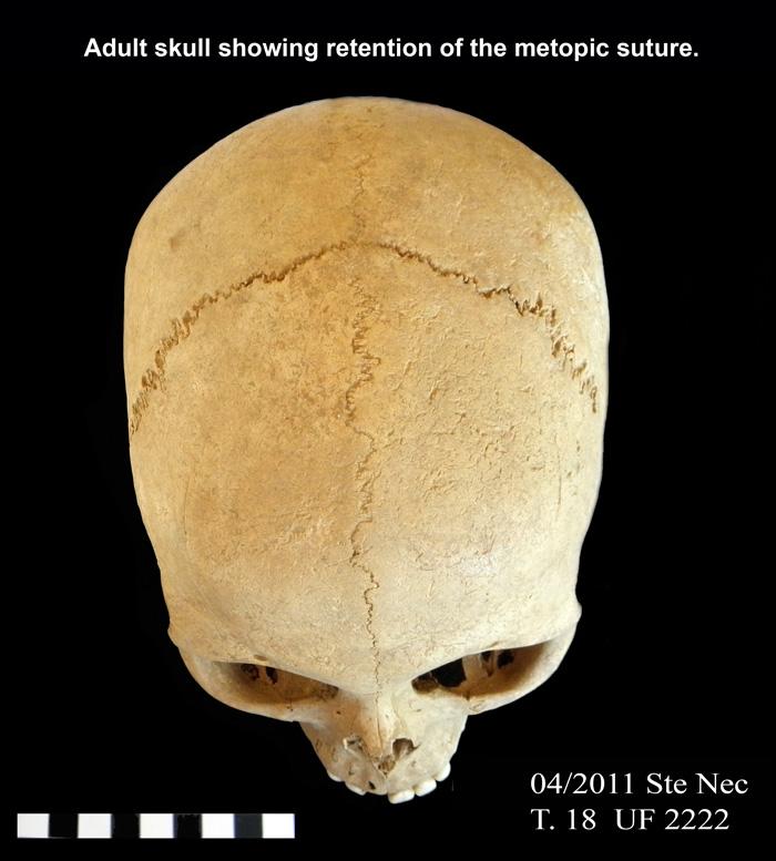 Adult Skull 24